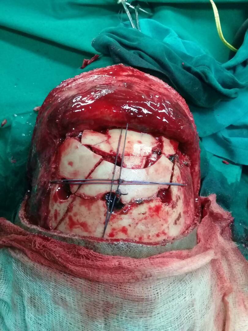 trauma case,with depressed skull fracture managed without fixation plates or crews and using hadson brace for craniotomy